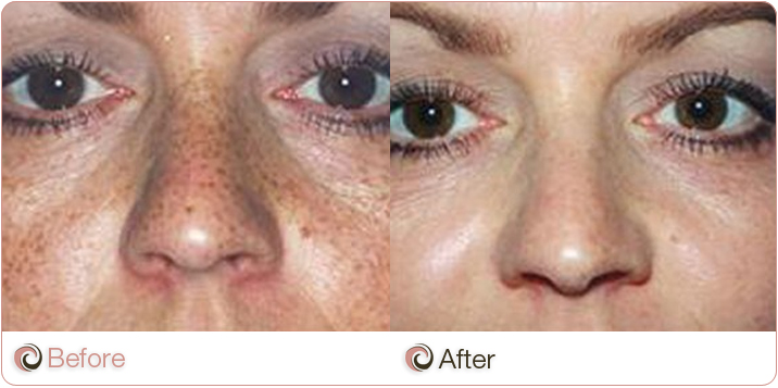 110311-COSCLI-before_and_after-laser-rejuvenation-5