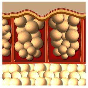 1.脂肪儲存在皮膚下形成脂肪團,使皮膚出現凹凸不平的狀況。囤積在大腿、臀部告腹部